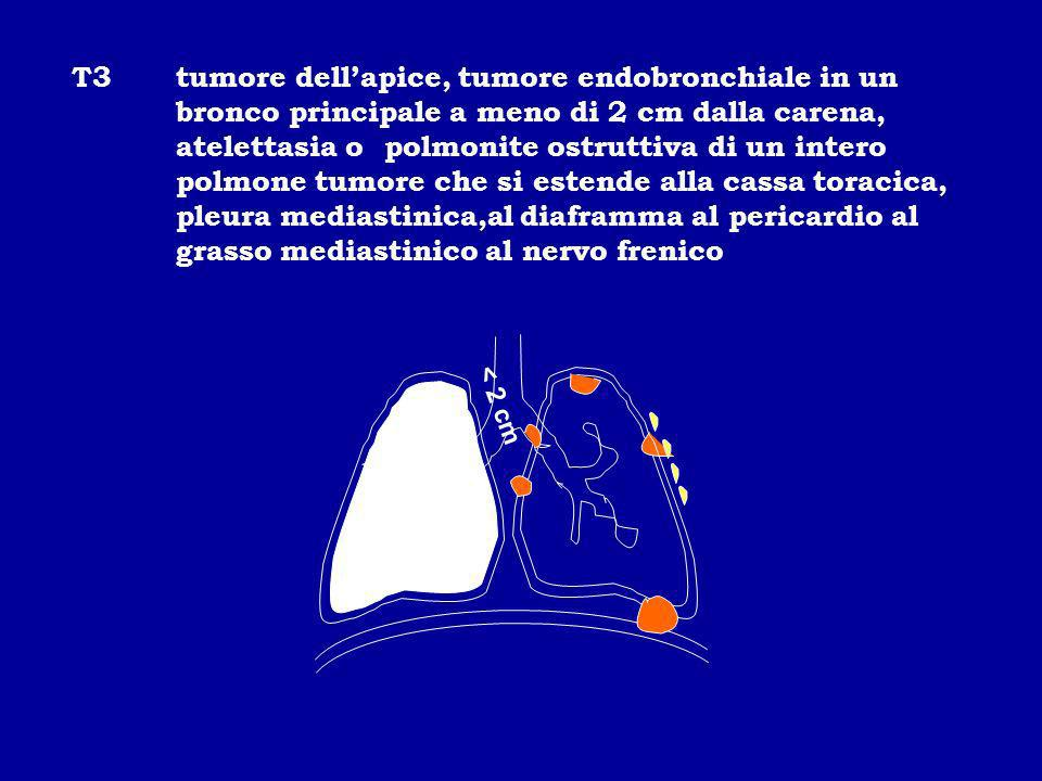 T3. tumore dell'apice, tumore endobronchiale in un