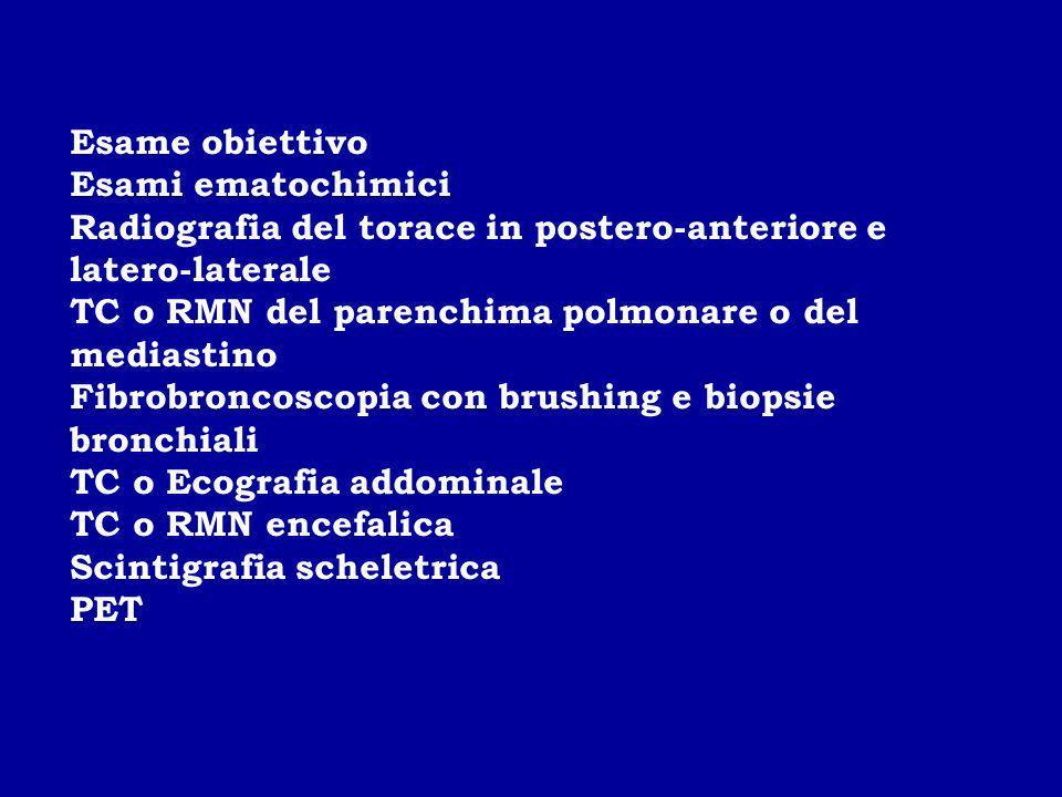 Esame obiettivo Esami ematochimici. Radiografia del torace in postero-anteriore e latero-laterale.