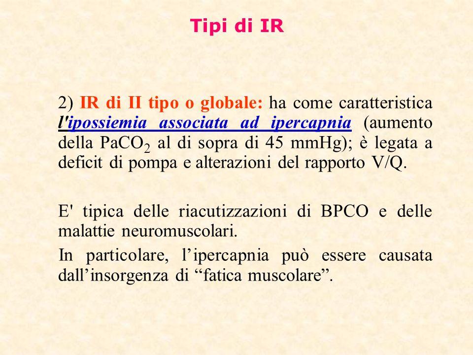 Tipi di IR