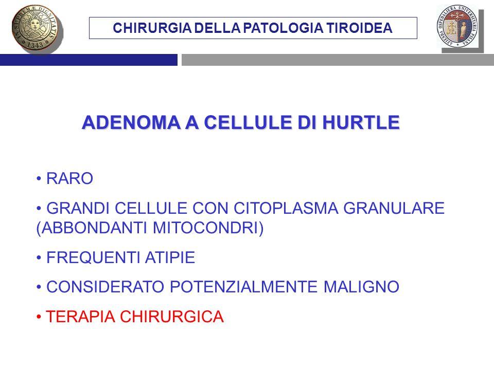 CHIRURGIA DELLA PATOLOGIA TIROIDEA ADENOMA A CELLULE DI HURTLE