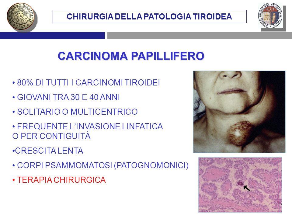 CHIRURGIA DELLA PATOLOGIA TIROIDEA CARCINOMA PAPILLIFERO