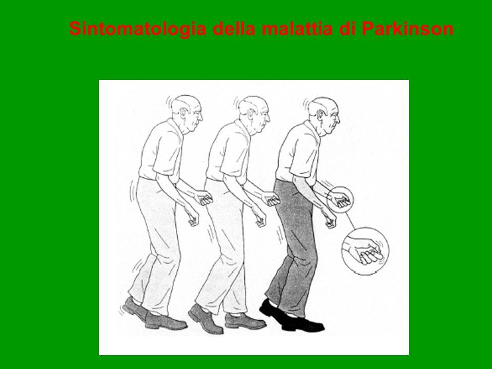 Sintomatologia della malattia di Parkinson