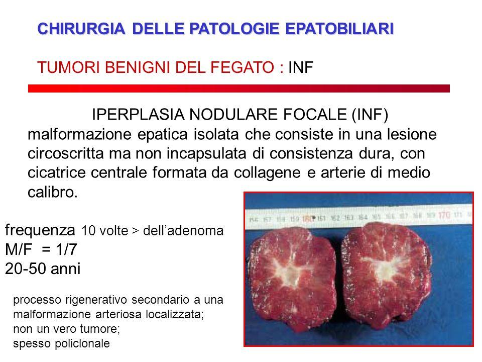 IPERPLASIA NODULARE FOCALE (INF)