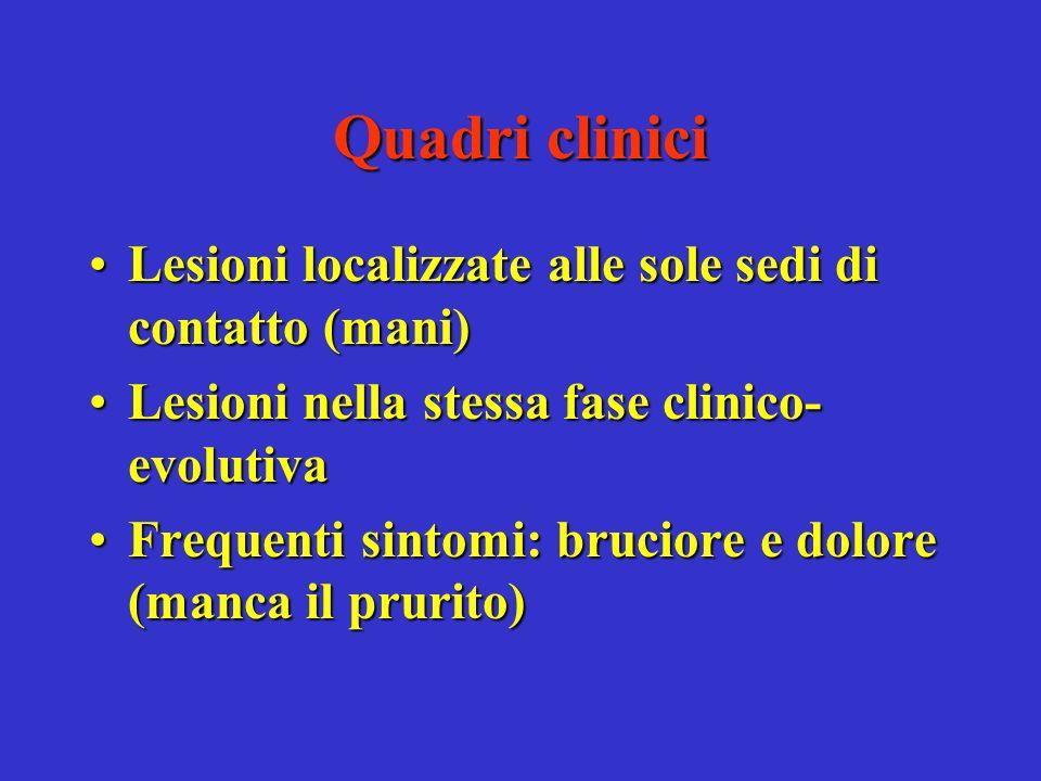 Quadri clinici Lesioni localizzate alle sole sedi di contatto (mani)