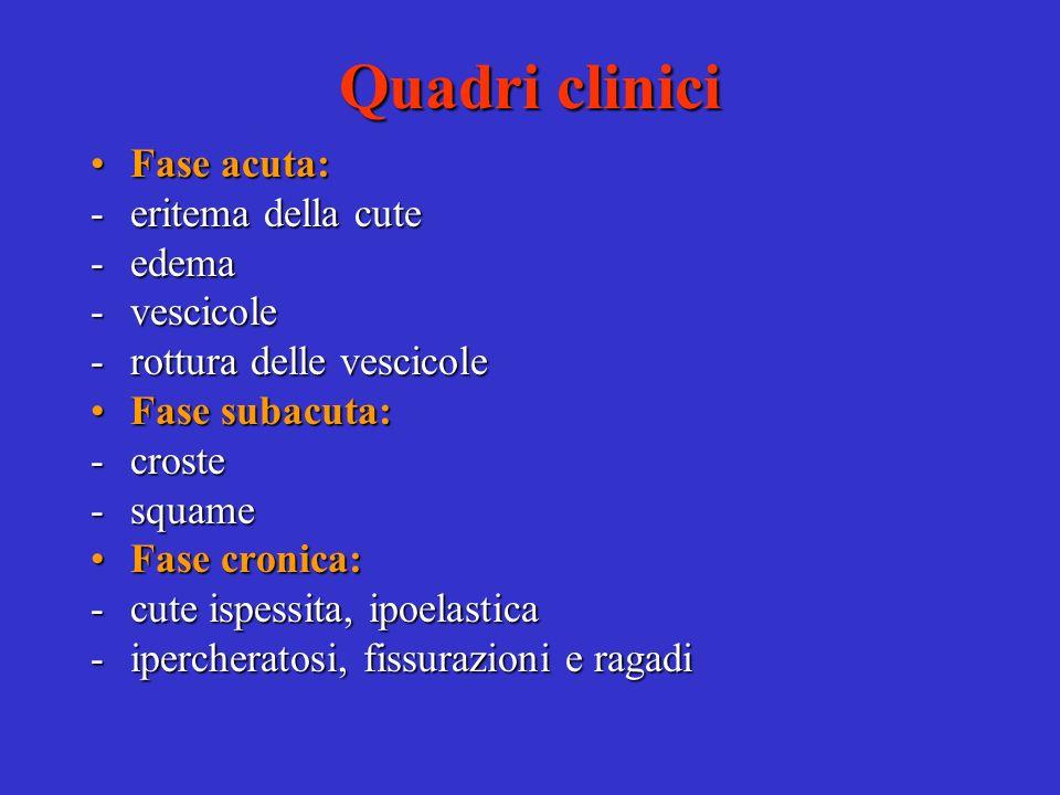 Quadri clinici Fase acuta: eritema della cute edema vescicole