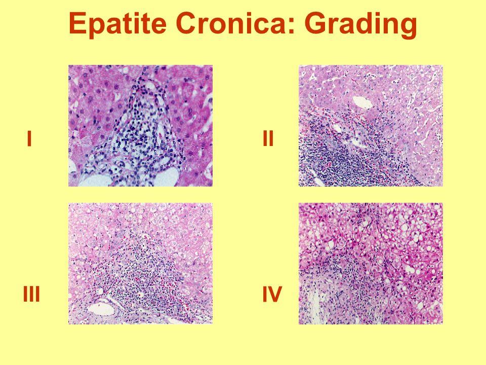 Epatite Cronica: Grading