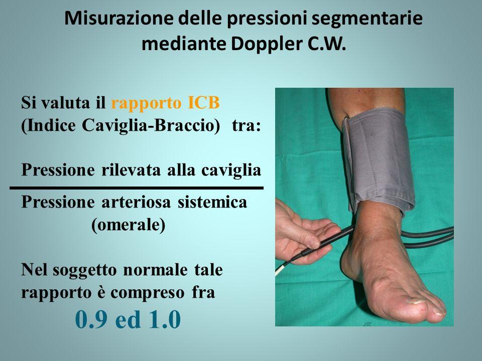 Misurazione delle pressioni segmentarie mediante Doppler C.W.