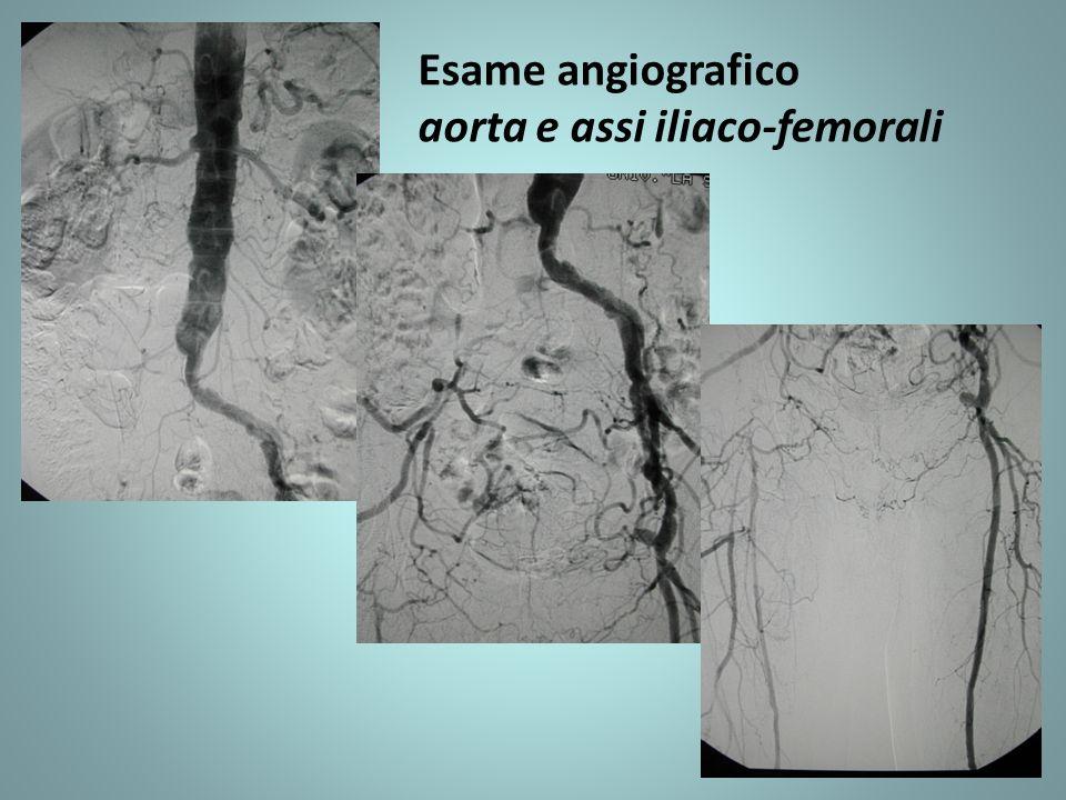 Esame angiografico aorta e assi iliaco-femorali