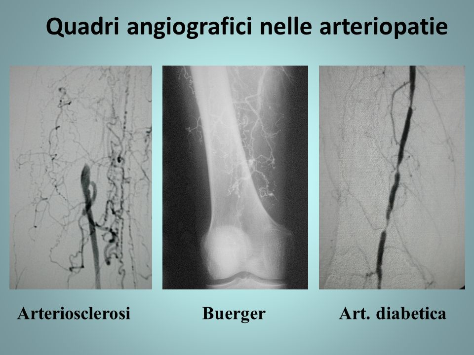 Quadri angiografici nelle arteriopatie