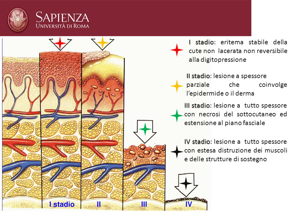 I stadio: eritema stabile della cute non lacerata non reversibile alla digitopressione