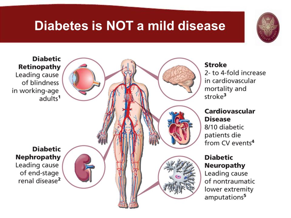 Diabetes is NOT a mild disease