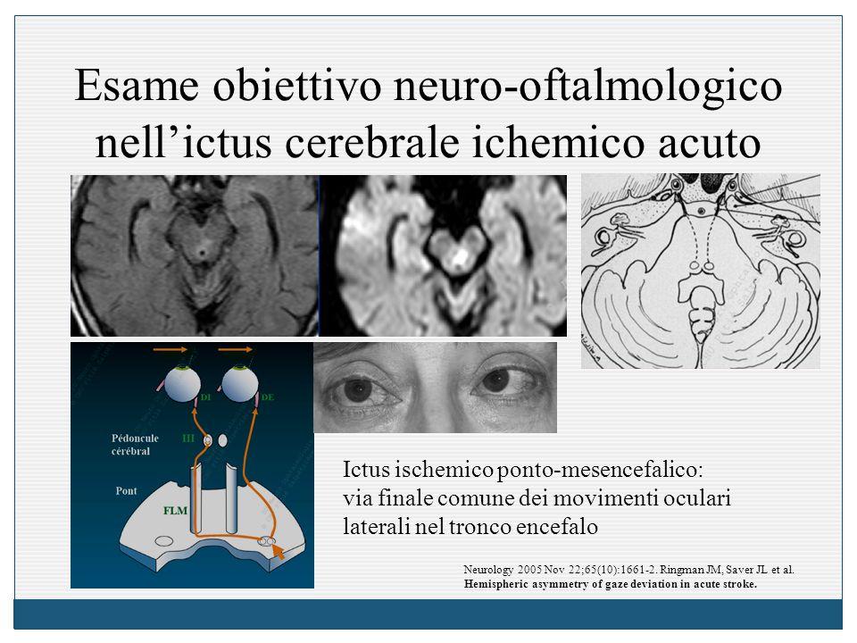 Esame obiettivo neuro-oftalmologico nell'ictus cerebrale ichemico acuto