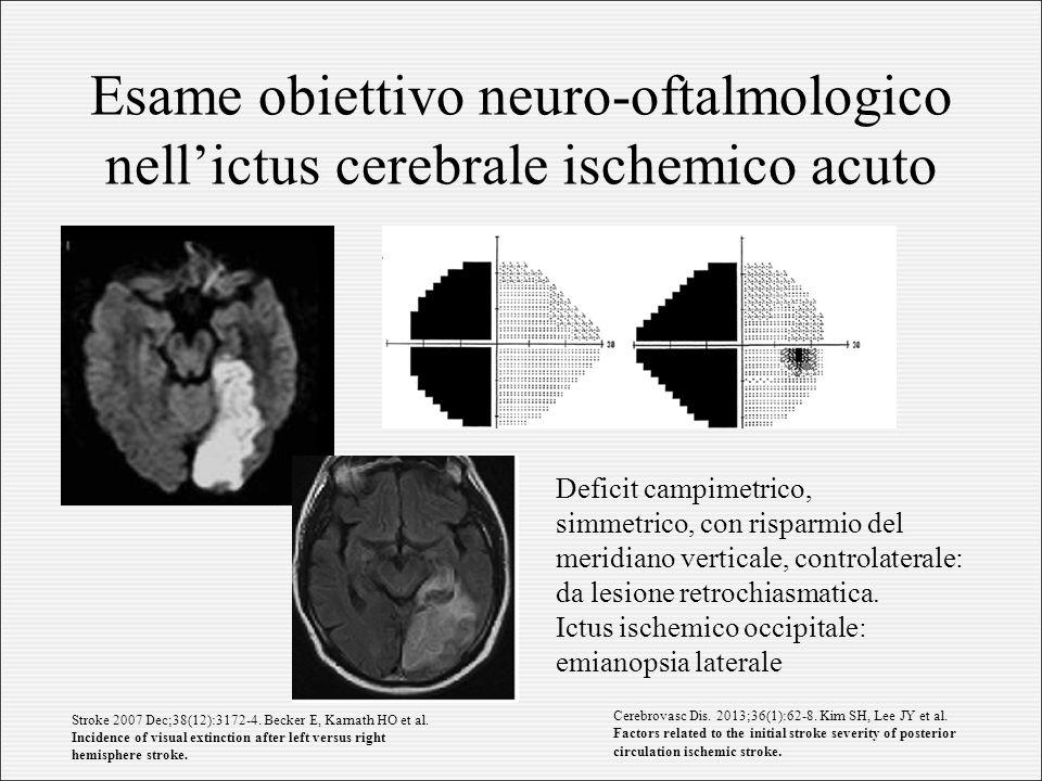 Esame obiettivo neuro-oftalmologico nell'ictus cerebrale ischemico acuto