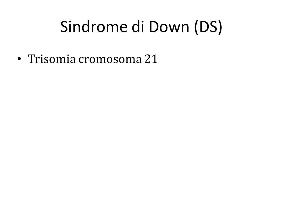 Sindrome di Down (DS) Trisomia cromosoma 21