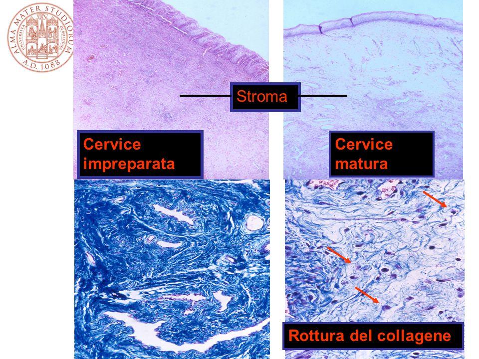 Stroma Cervice impreparata Cervice matura Rottura del collagene