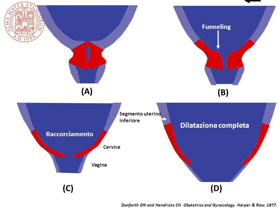 (A) (B) (C) (D) Dilatazione completa Funneling Raccorciamento