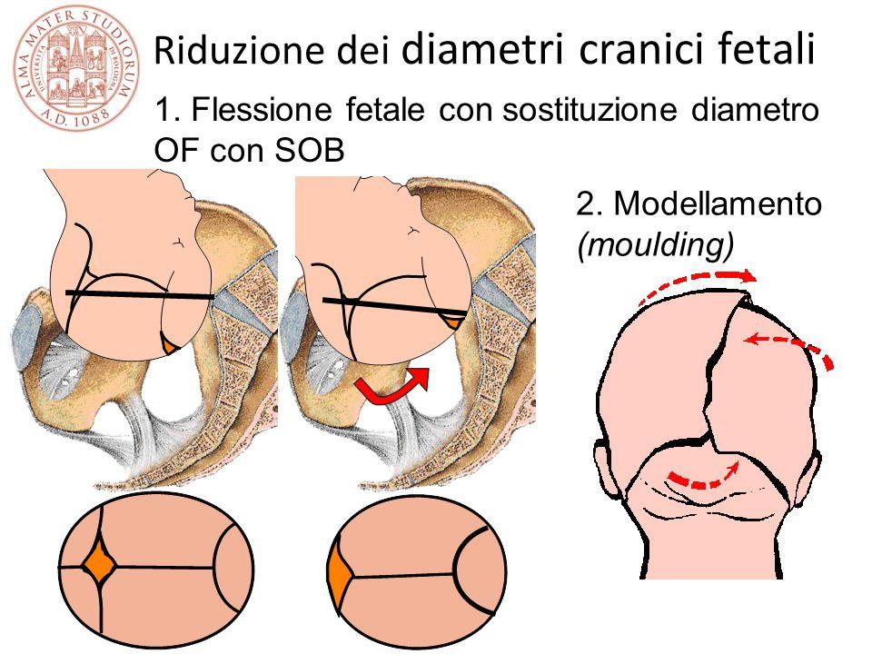 Riduzione dei diametri cranici fetali