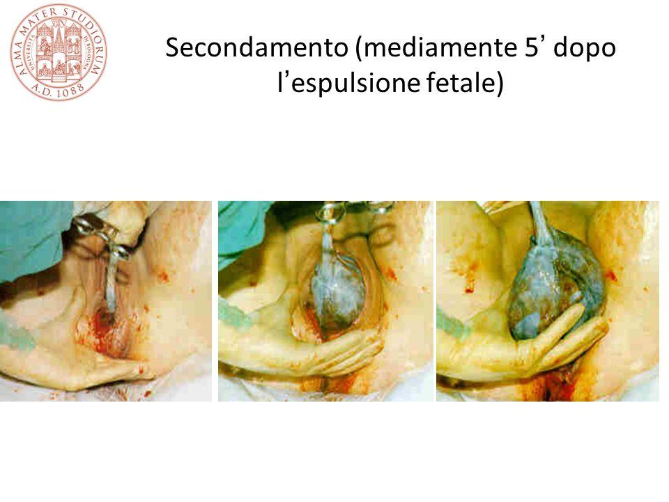 Secondamento (mediamente 5' dopo l'espulsione fetale)