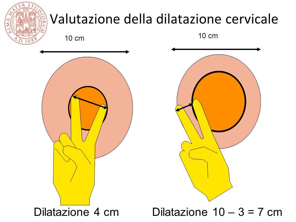Valutazione della dilatazione cervicale