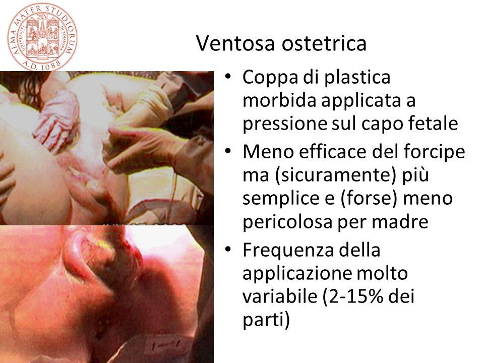 Ventosa ostetrica Coppa di plastica morbida applicata a pressione sul capo fetale.