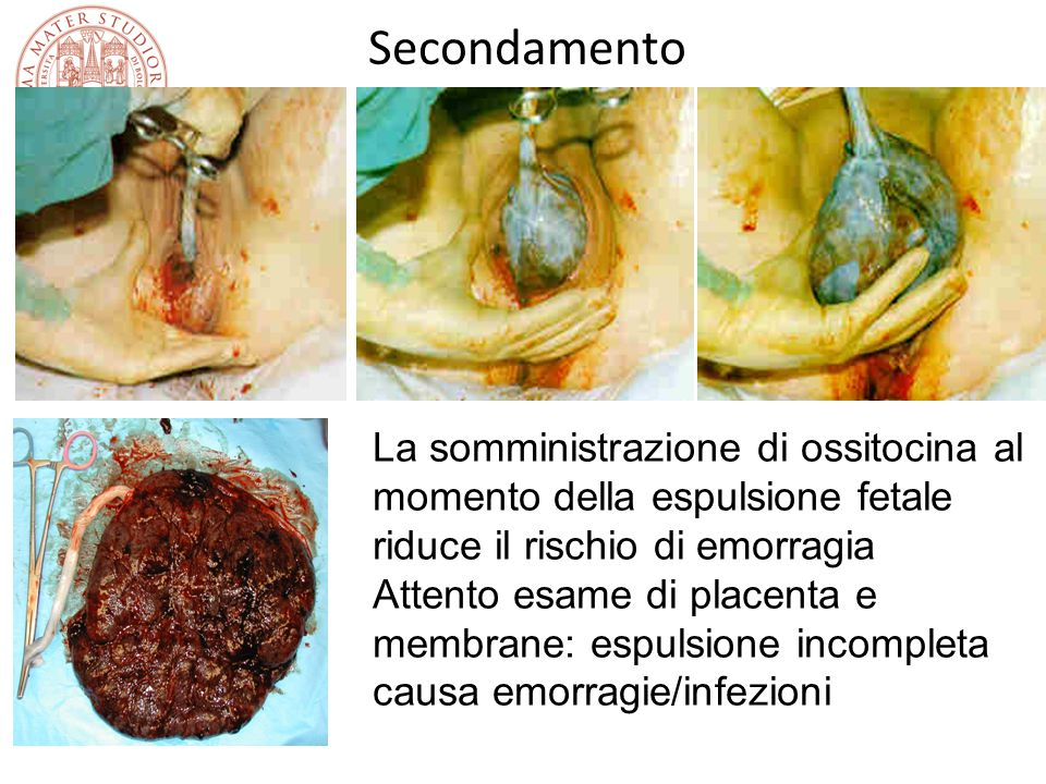 Secondamento La somministrazione di ossitocina al momento della espulsione fetale riduce il rischio di emorragia.