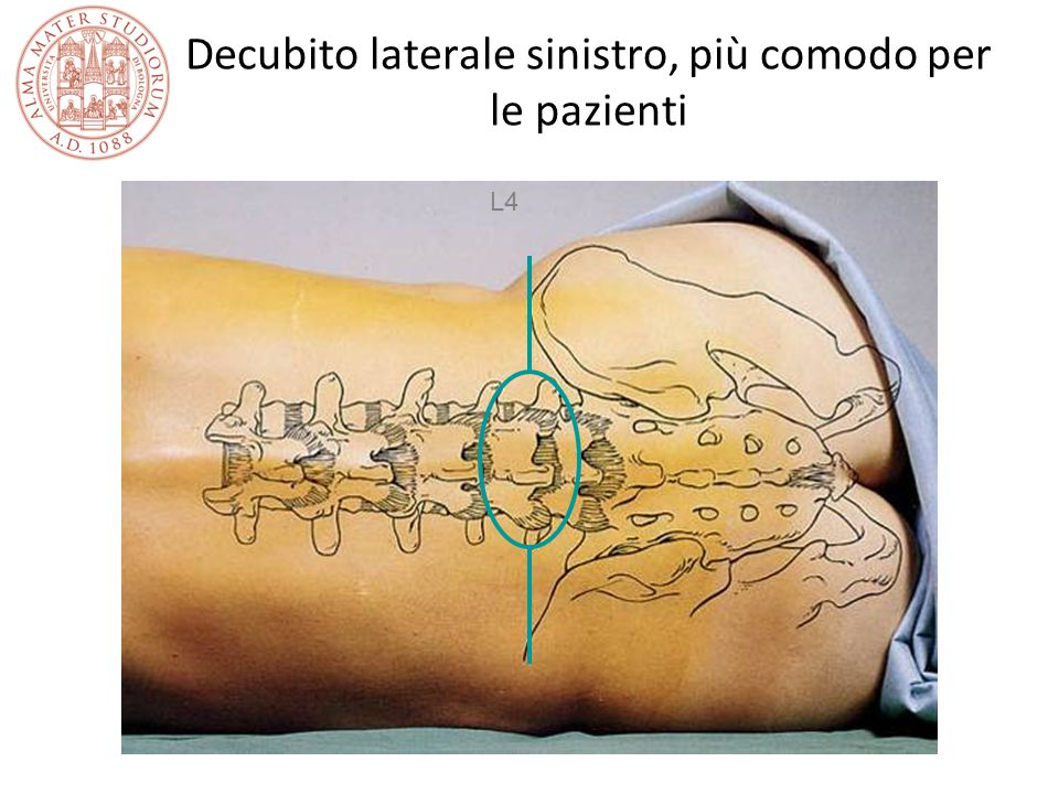 Decubito laterale sinistro, più comodo per le pazienti