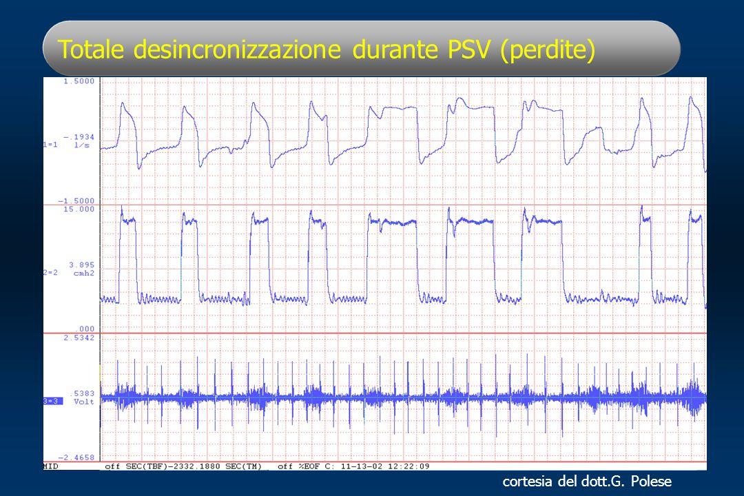 Totale desincronizzazione durante PSV (perdite)