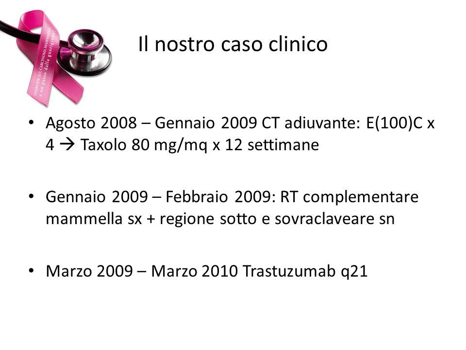 Il nostro caso clinico Agosto 2008 – Gennaio 2009 CT adiuvante: E(100)C x 4  Taxolo 80 mg/mq x 12 settimane.