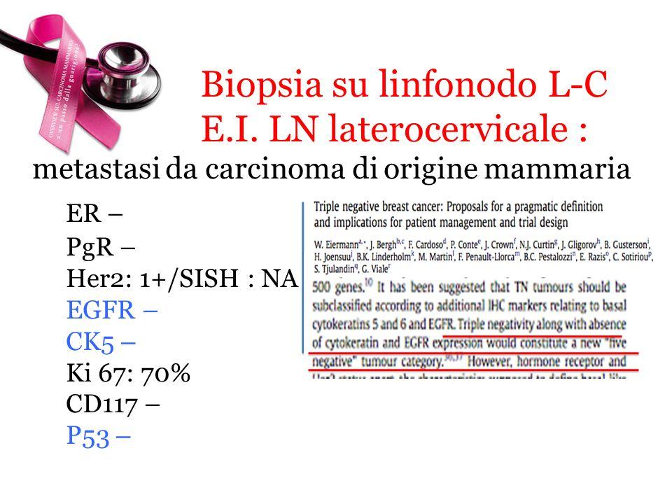 Biopsia su linfonodo L-C E.I. LN laterocervicale : ER –