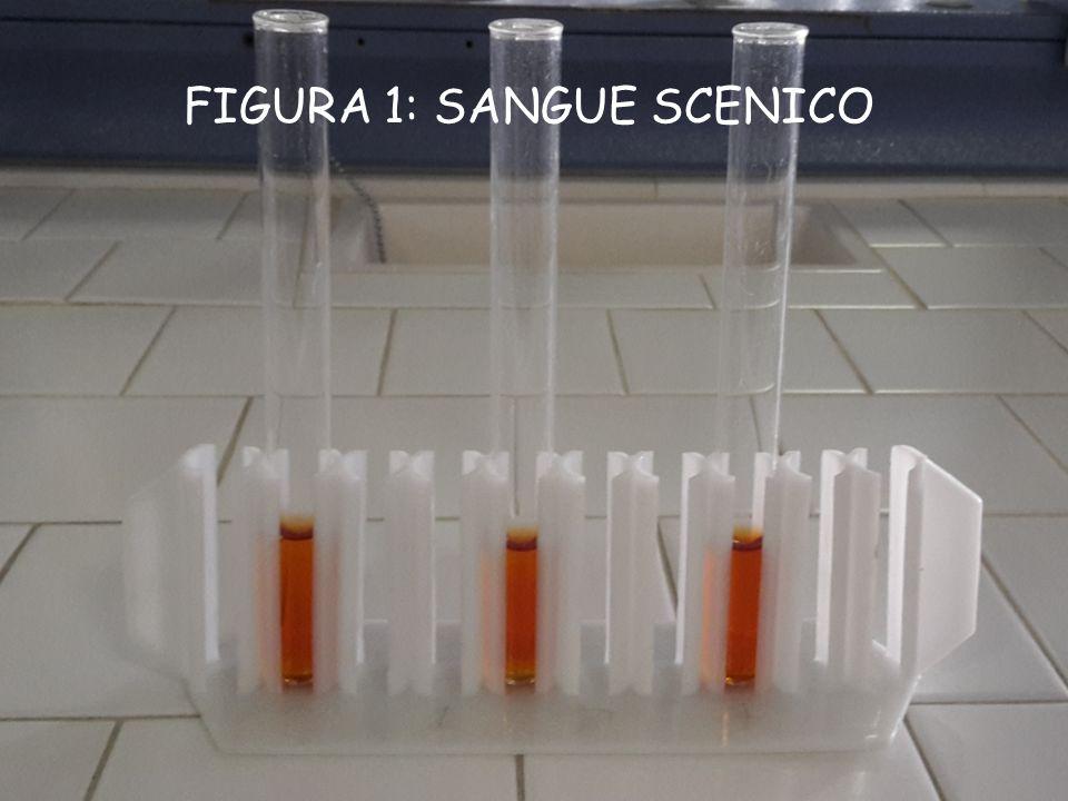 FIGURA 1: SANGUE SCENICO