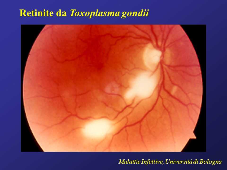 Retinite da Toxoplasma gondii