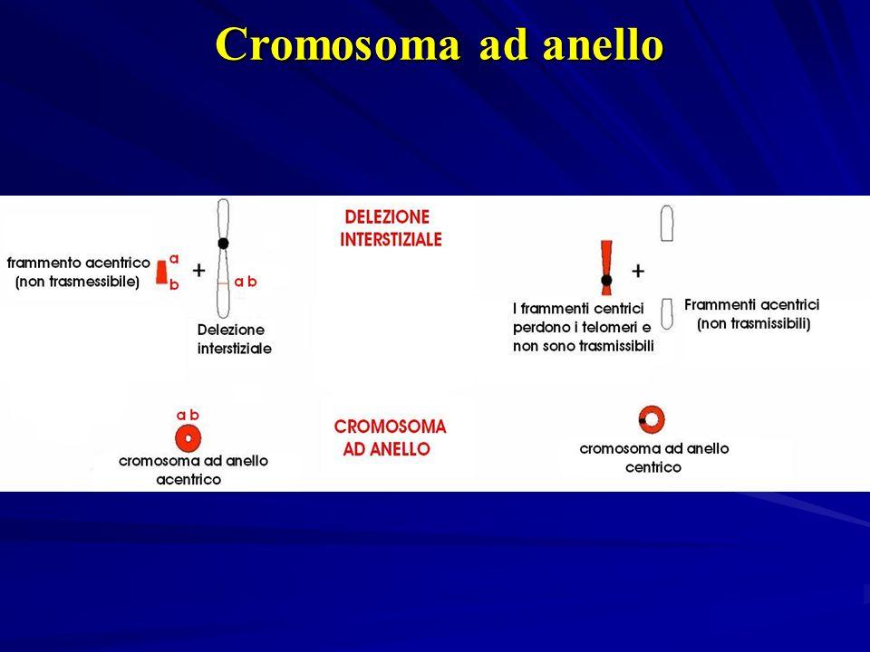 Cromosoma ad anello