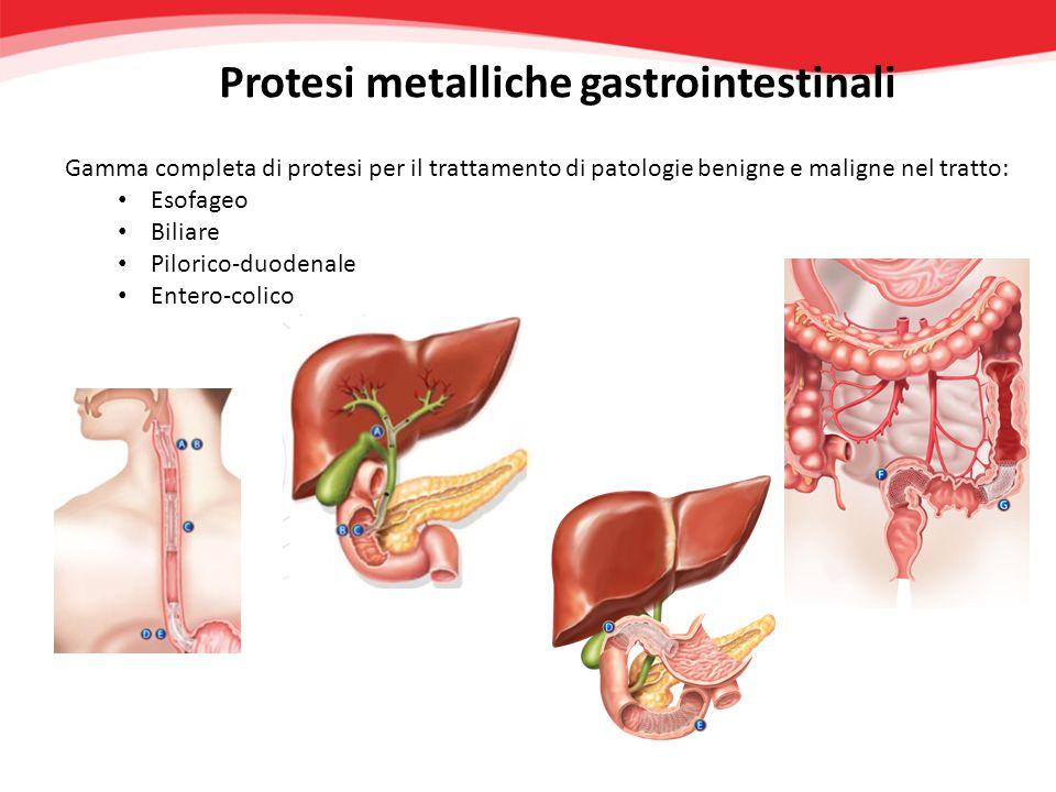 Protesi metalliche gastrointestinali