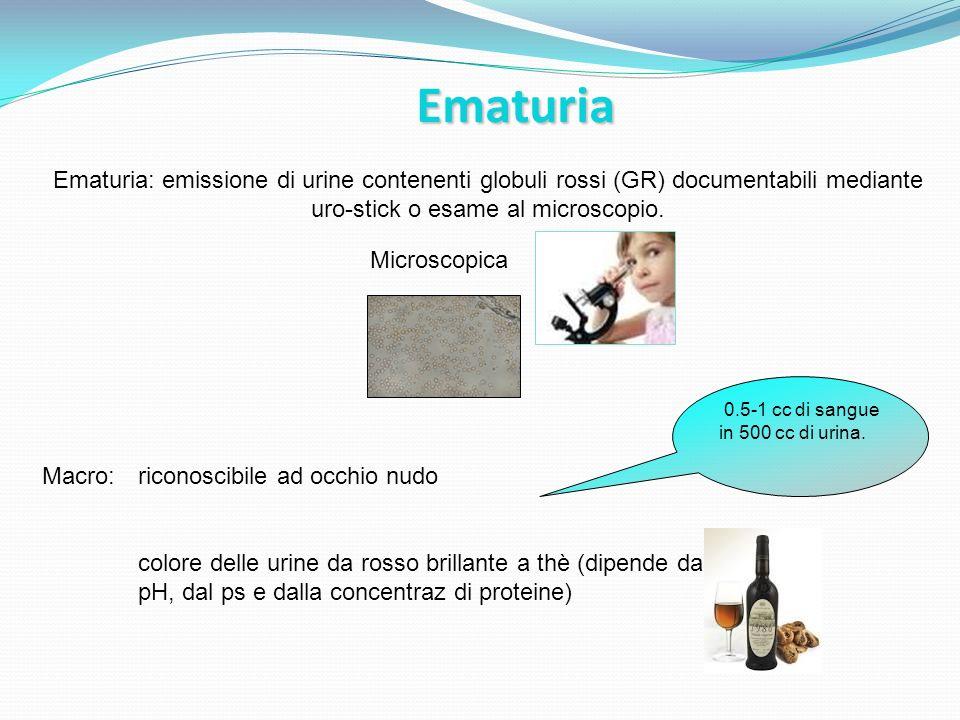 Ematuria Ematuria: emissione di urine contenenti globuli rossi (GR) documentabili mediante uro-stick o esame al microscopio.