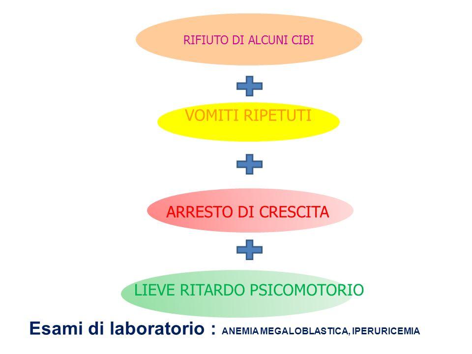 Esami di laboratorio : ANEMIA MEGALOBLASTICA, IPERURICEMIA