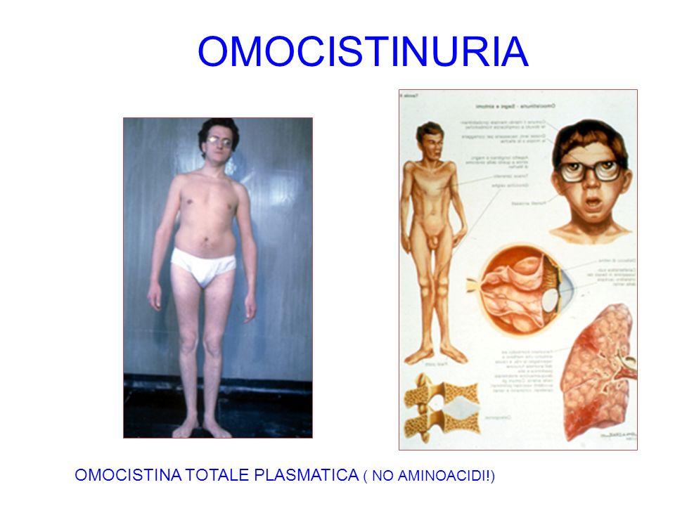 OMOCISTINURIA OMOCISTINA TOTALE PLASMATICA ( NO AMINOACIDI!)