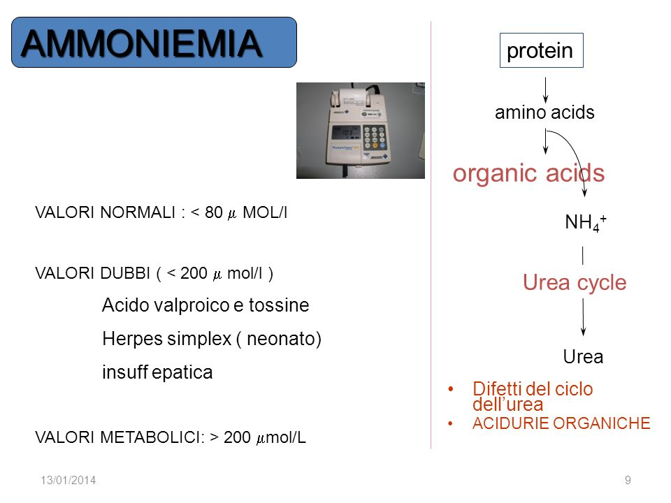 AMMONIEMIA organic acids protein Urea cycle amino acids NH4+