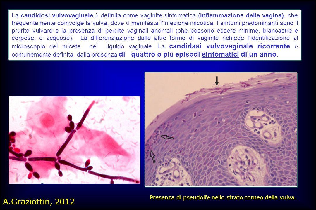 La candidosi vulvovaginale è definita come vaginite sintomatica (infiammazione della vagina), che frequentemente coinvolge la vulva, dove si manifesta l'infezione micotica. I sintomi predominanti sono il prurito vulvare e la presenza di perdite vaginali anomali (che possono essere minime, biancastre e corpose, o acquose). La differenziazione dalle altre forme di vaginite richiede l'identificazione al microscopio del micete nel liquido vaginale. La candidasi vulvovaginale ricorrente è comunemente definita dalla presenza di quattro o più episodi sintomatici di un anno.