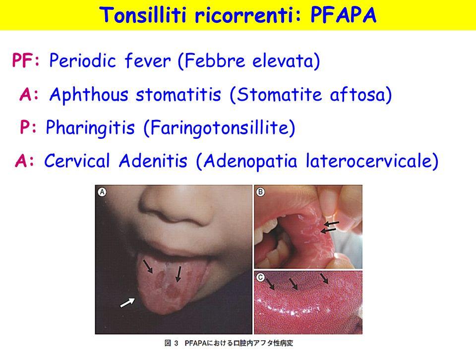 Tonsilliti ricorrenti: PFAPA