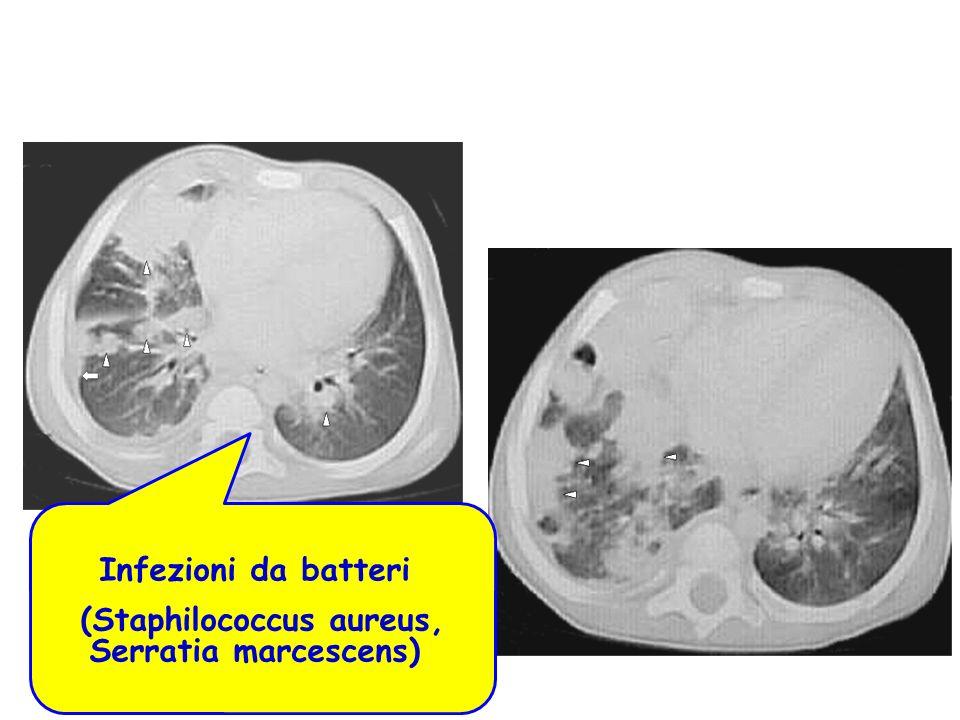 (Staphilococcus aureus, Serratia marcescens)