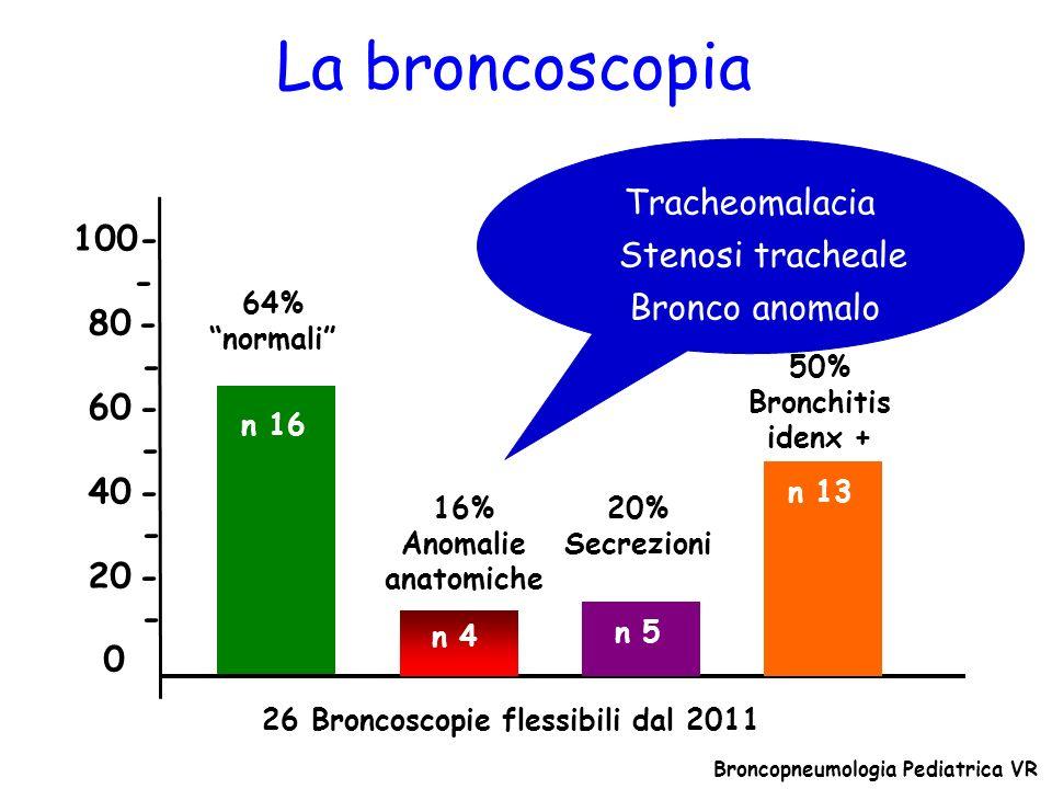 26 Broncoscopie flessibili dal 2011