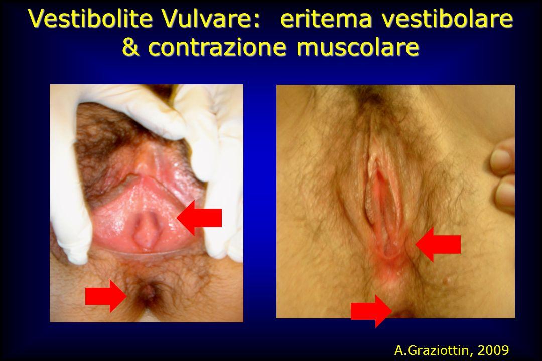 Vestibolite Vulvare: eritema vestibolare & contrazione muscolare