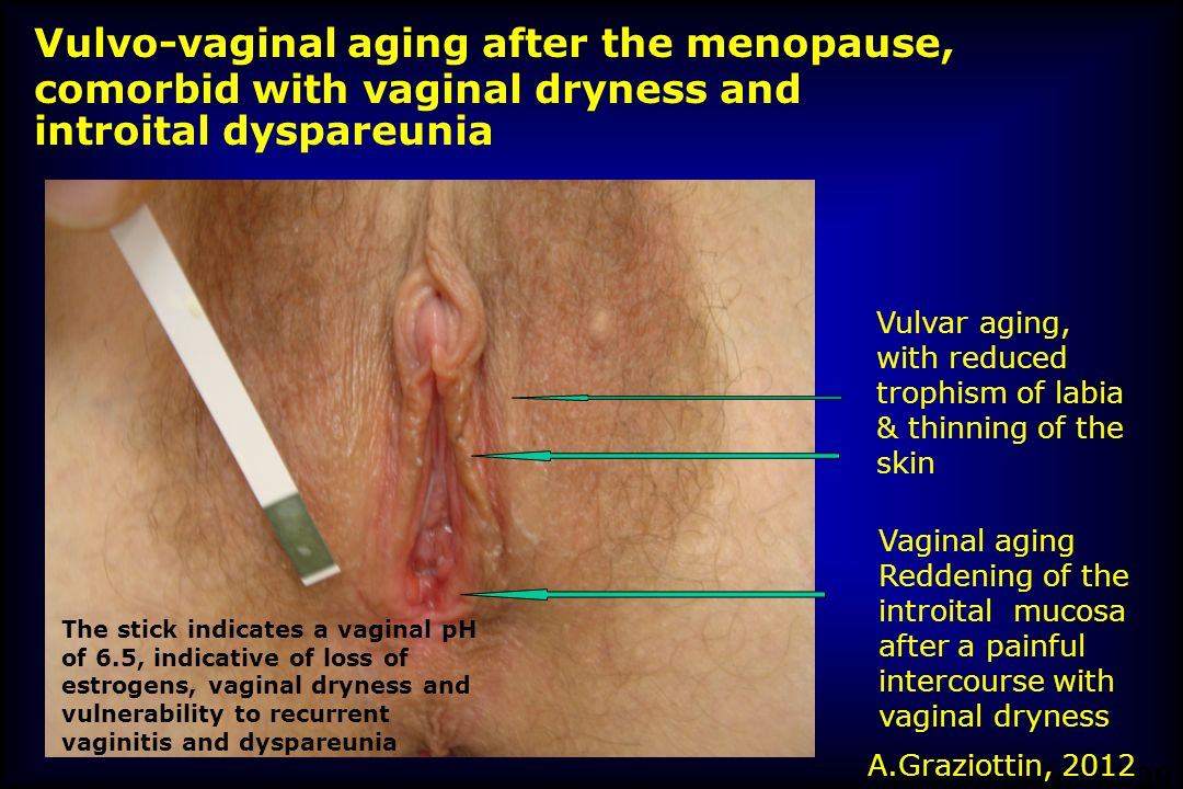 Vulvo-vaginal aging after the menopause,