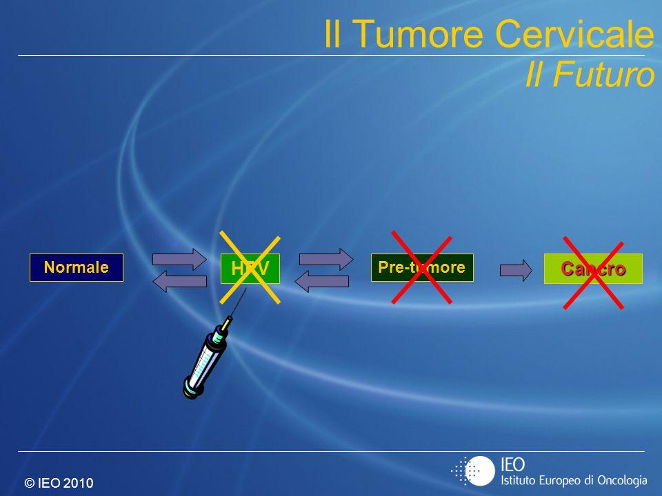 Il Tumore Cervicale Il Futuro HPV Cancro Normale Pre-tumore