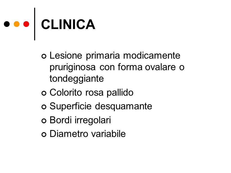 CLINICA Lesione primaria modicamente pruriginosa con forma ovalare o tondeggiante. Colorito rosa pallido.