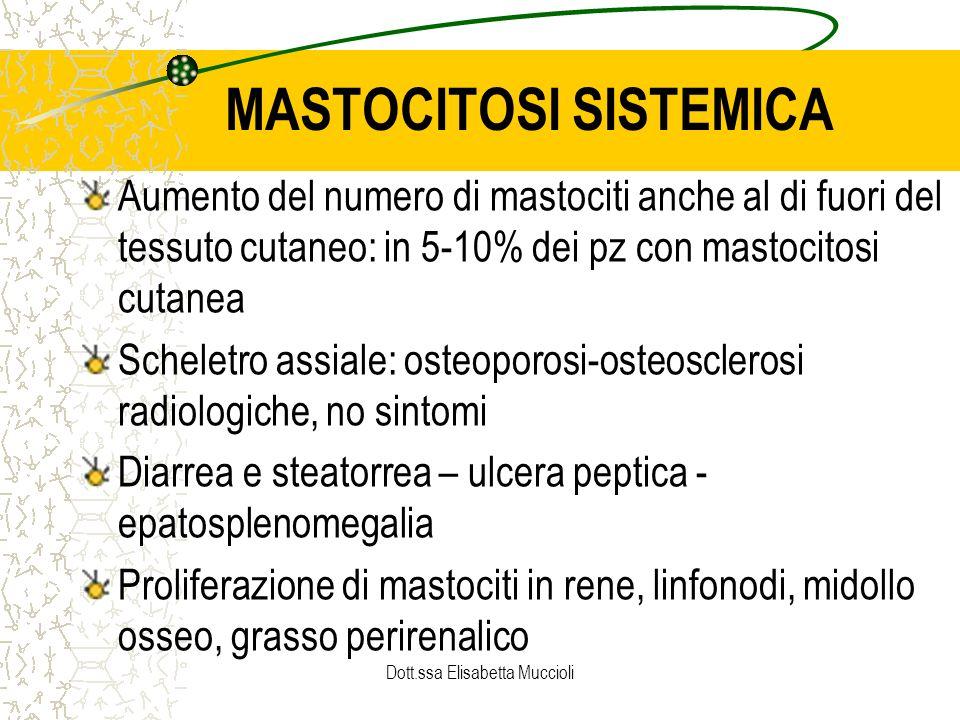 MASTOCITOSI SISTEMICA