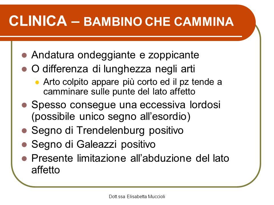 CLINICA – BAMBINO CHE CAMMINA