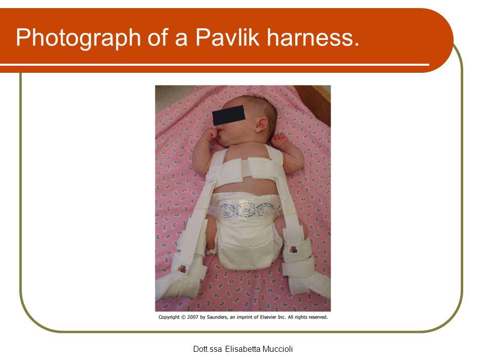 Photograph of a Pavlik harness.