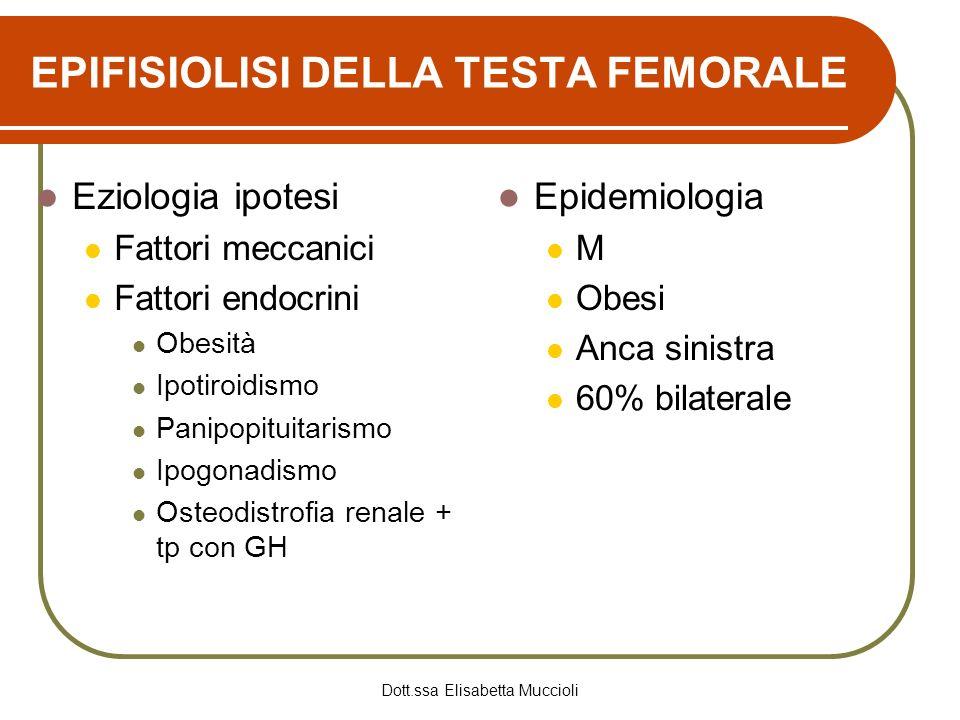 EPIFISIOLISI DELLA TESTA FEMORALE