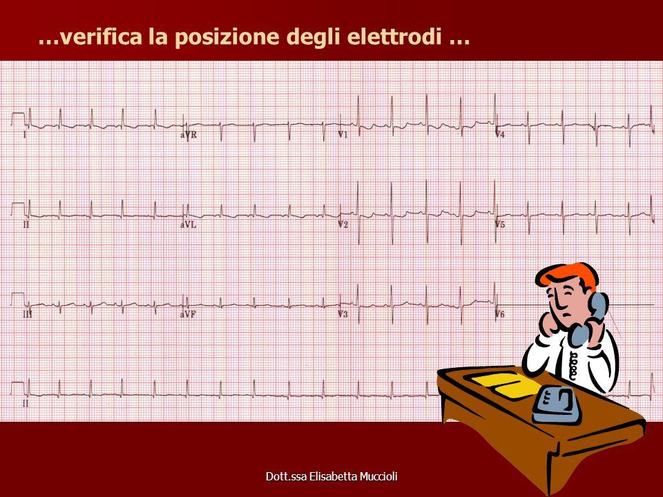 …verifica la posizione degli elettrodi …